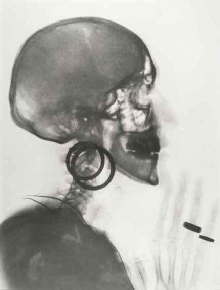 Oppenheim, Röntgenaufnahme des Schädels M.O., 1964
